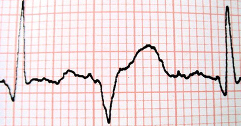 آریتمی قلبی ضربان قلب خطرناک چند است دکتر آرزو خسروی