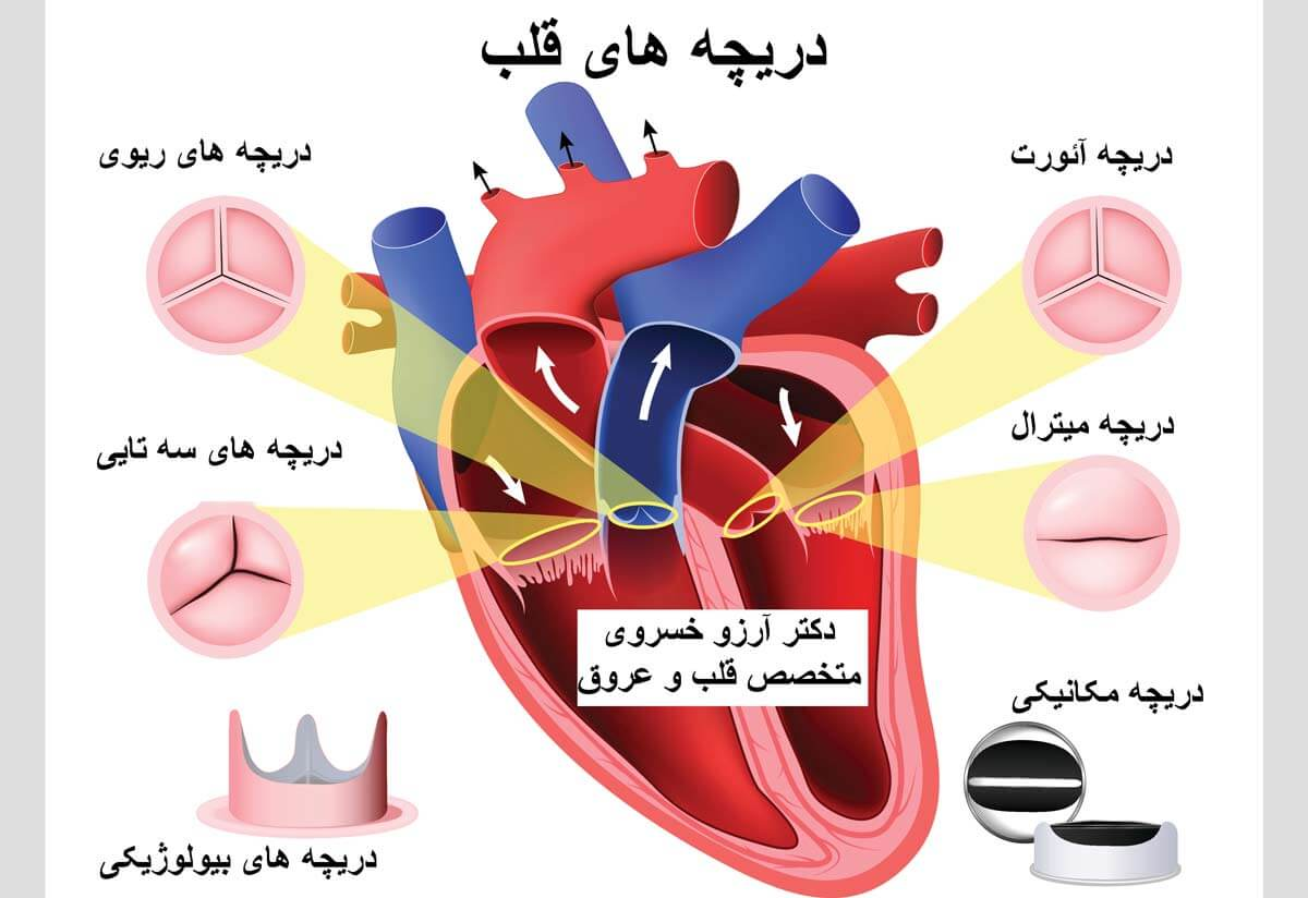 گشادی دریچه قلب